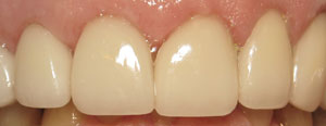 Older man's smile repaired with crowns and veneers