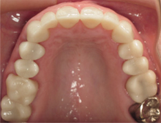 Top teeth tooth-colored fillings