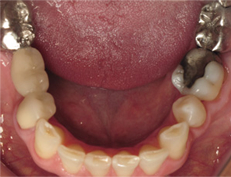 Bottom teeth with large metal fillings