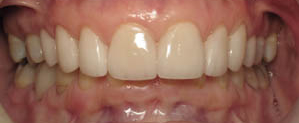 Front tooth discoloration repaired with veneers