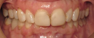 Front teeth with discoloration