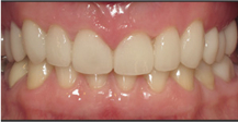 Front of mouth with flawless correction