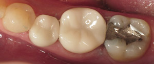 Closeup of teeth with ceramic same day crowns