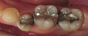 Closeup of teeth with metal fillings