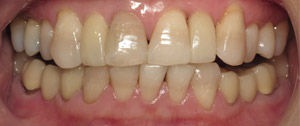 Front teeth with dental implant supported relacement teeth