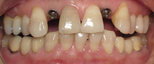 Front teeth after implants are placed