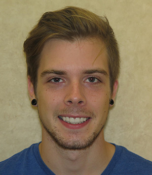 Young man with flawless smile after crown and veneer treatment