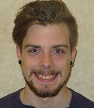 Young man before treatment with crowns and veneers