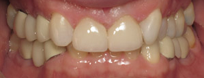 Front teeth with gap filled in