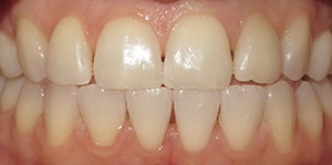 Teeth alignmment corrected with Invisalign