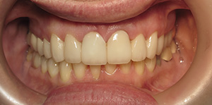Front teeth repaired with dental crowns