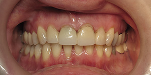 Closeup of teeth with dark staining at gums