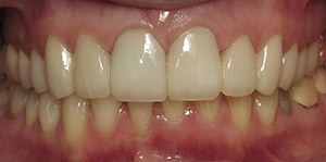 Teeth repaired with dental crowns