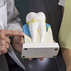 Model of tooth with plaque buildup