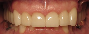 Closeup of flawlessly repaired teeth