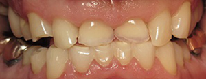 Closeup of short broken front teeth