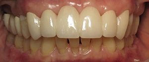 Closeup of flawless natural dental bridge