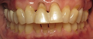 Closeup of failing dental bridge