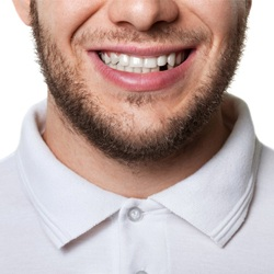 man smiling missing tooth