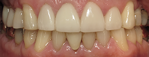 Closeup of smile after dental implant restoration