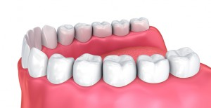 Your family dentist in Chaska answers typical questions about wisdom teeth.