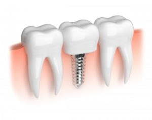 Illustration of dental implants.